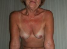 Exhibe ses seins - Rencontre internet