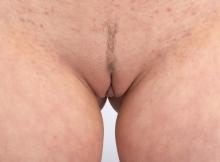 Sexe de femme : fente profonde