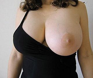 Un gros sein qui déborde